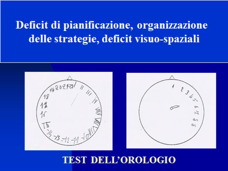 Test dellorologio